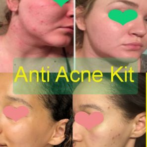 best acne kits